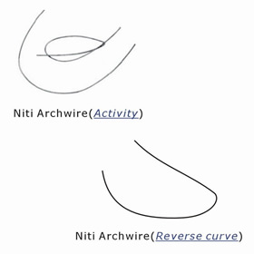 Orthodontic Activity& Reverse Curve Archwire