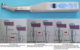 TR-ZY Automatic Root Canal Treatment